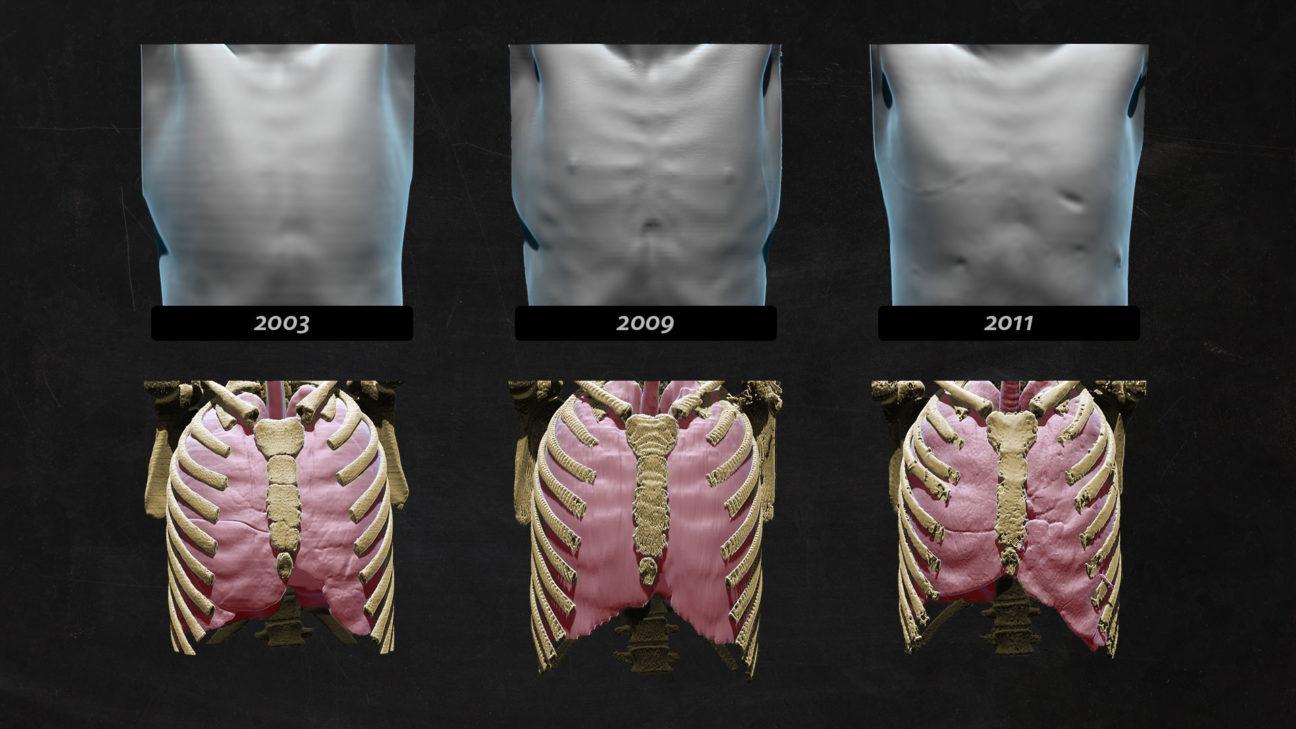 3D-Illustration: Brustkorb, Rippen und Lungen im zeitlichen Vergleich, basierend auf CT-Scan