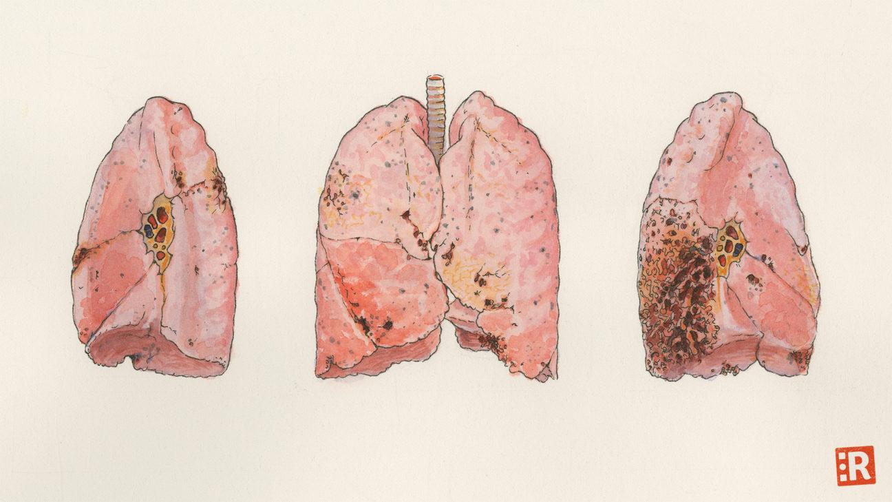 Illustration: zerfressene menschliche Lunge von drei Seiten (Aquarell)