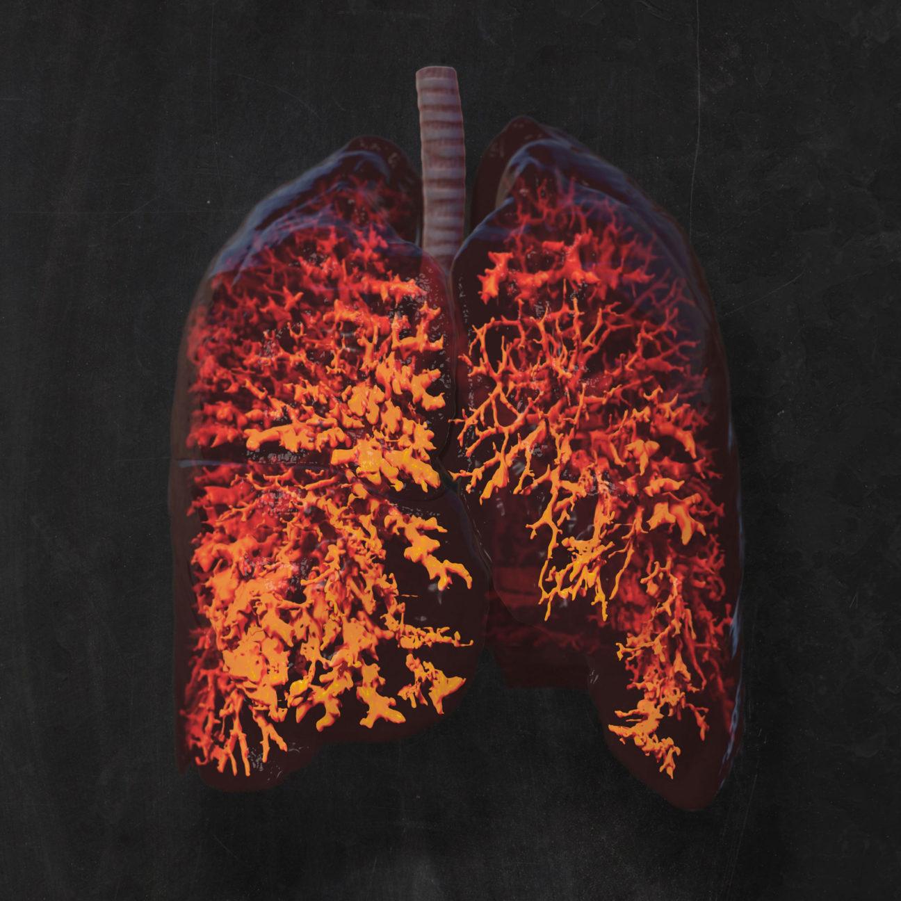 3D-Visualisierung: Durchsichte Lunge eines Mukoviszidose-Patienten mit Blick auf die krankhaft veränerten Atemwege (Bronchiektasen)