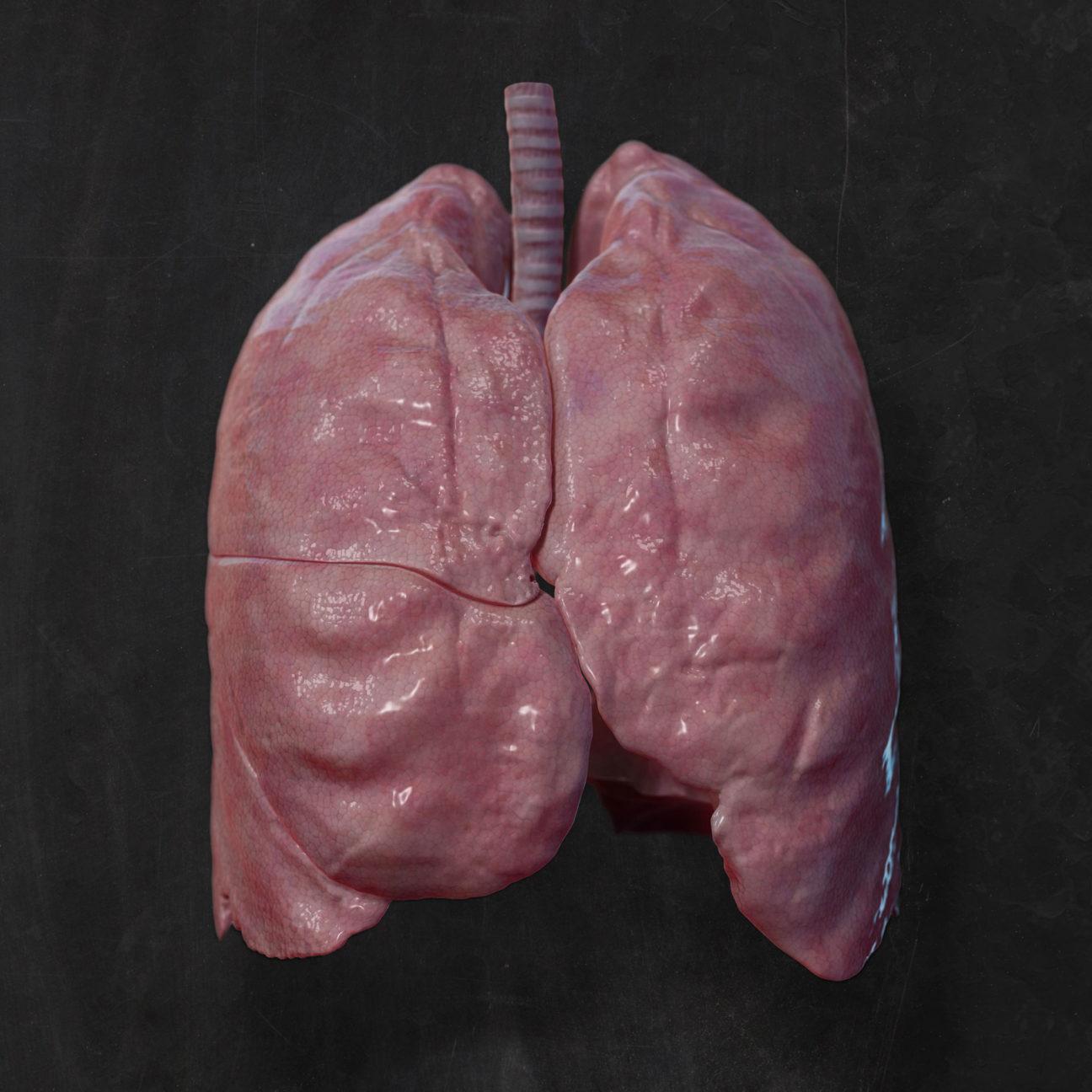 3D-Visualisierung: Frontale Aussenansicht einer an Mukoviszidose erkrankten menschlichen Lunge