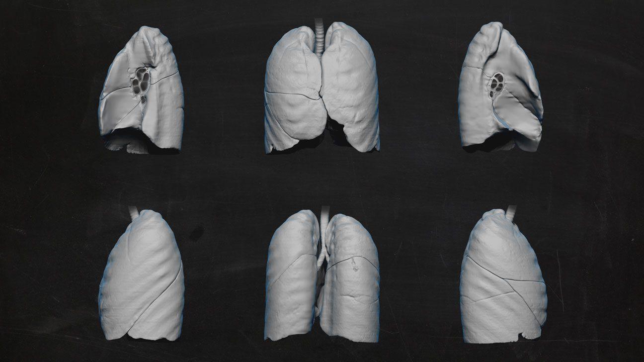 3D-Illustration: 6 Ansichten einer farblosen menschlichen Lunge vor schwarzem Grund