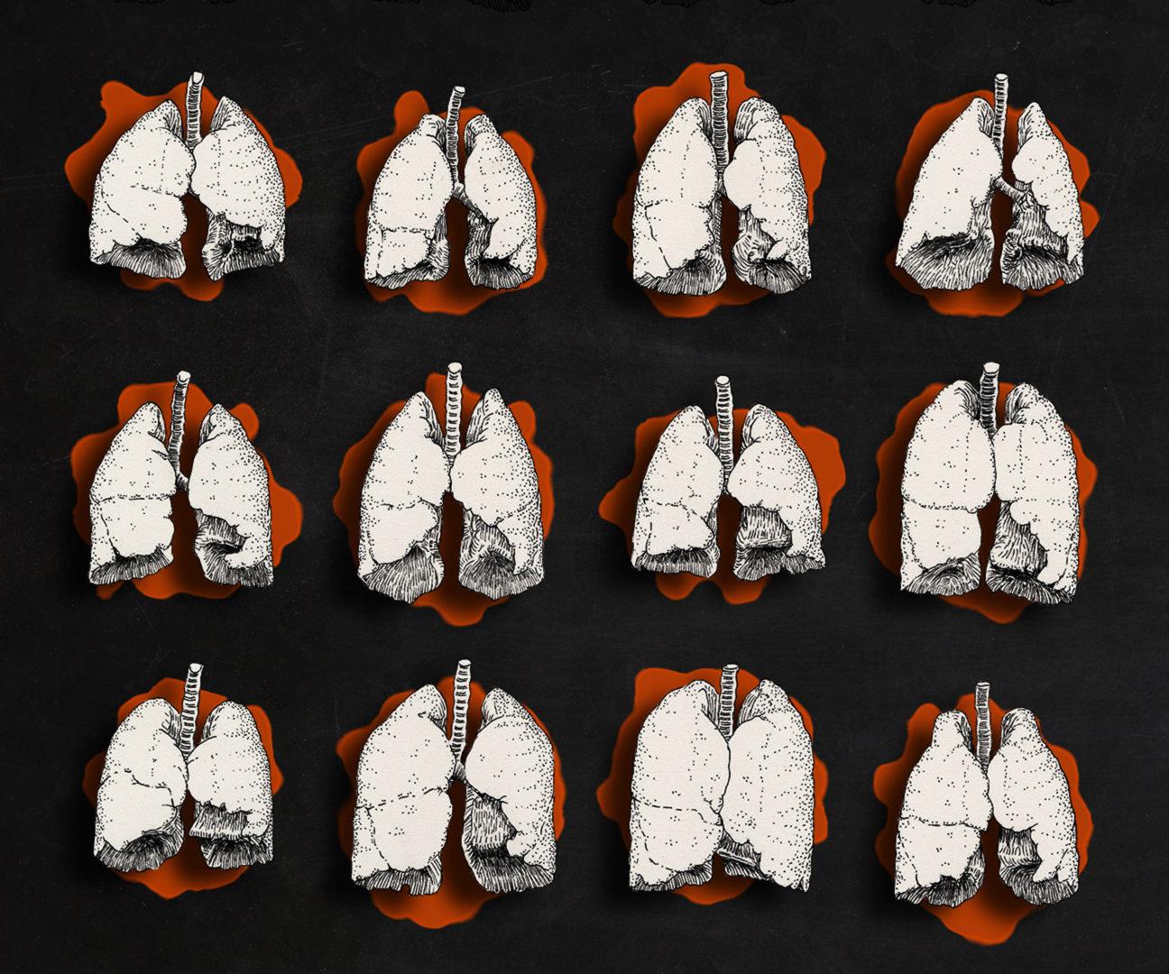 Illustration: Strichzeichung von 12 unterschiedliche menschliche Lungen in Frontalansicht