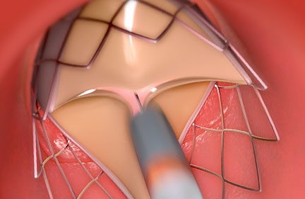 Aortenklappenersatz via Herzkatheter
